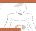 Curso online de Formación en Síndromes Genéticos Asociados a Tumores Endocrinos